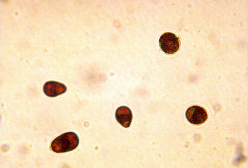 Dunaliella salina cells, showing red inclusions of β-carotene.