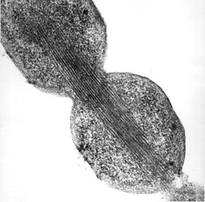 Electro micrograph of potyvirus-like particles formed inside the cells of _Escherichia coli_ bacteria that are overexpressing the potyvirus coat protein
