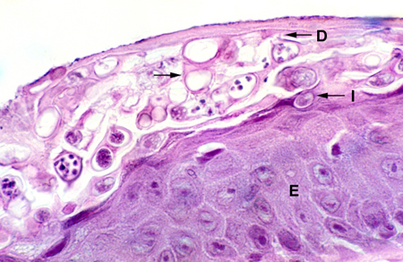 Histological section of infected skin with various stages of the amphibian chytrid present in the outer epidermal layers